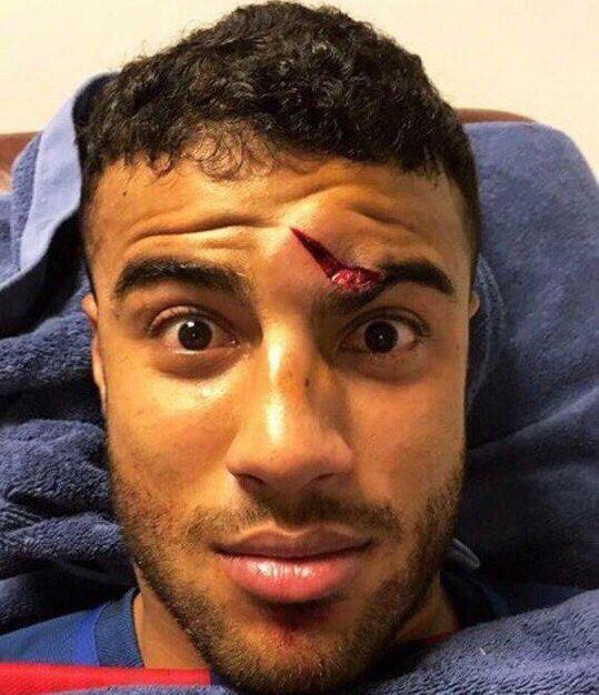 Игрок Барселоны показал свое жуткое рассечение на лице
