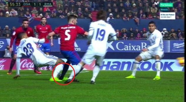 Игрок Реала показал свою изувеченную ногу