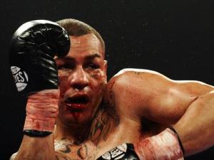 Альварадо порезали лицо