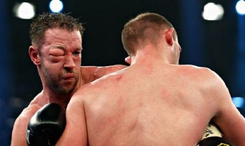 """Маккаринелли: """"Если бы не травма глаза, я бы победил Бремера"""""""